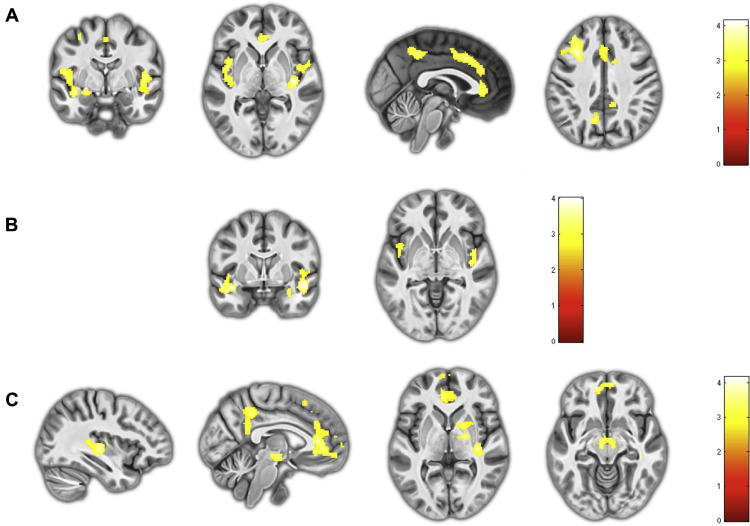 Primary and Secondary Variants of Psychopathy in a Volunteer Sample