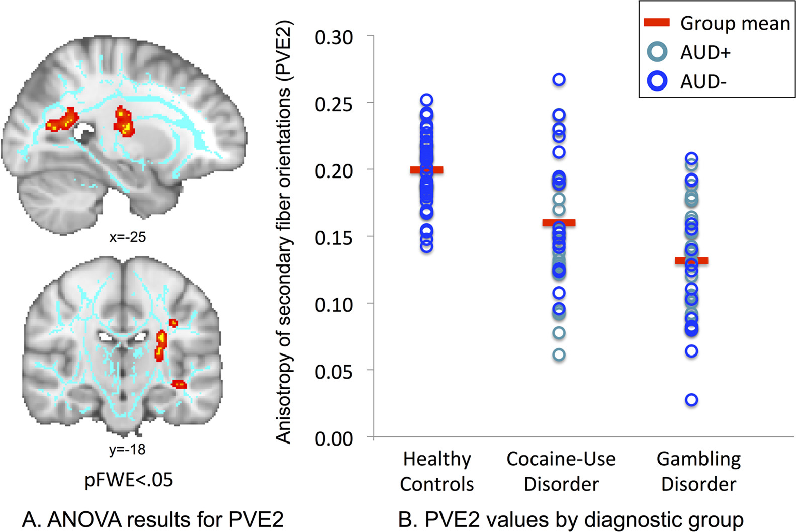 Extensive abnormality of brain white matter integrity in pathological gambling harlow casino in greenville ms