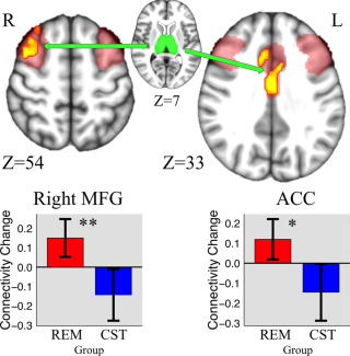 Increases in Intrinsic Thalamocortical Connectivity and